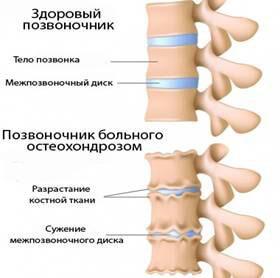 Осложнения позвоночника при остеохондрозе