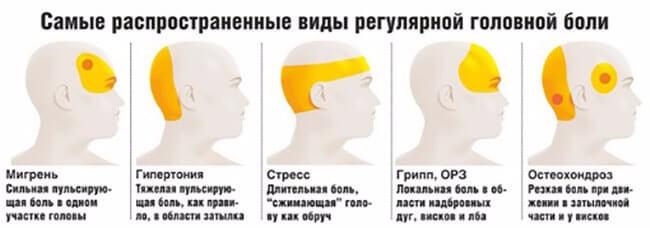 Какие бывают головные боли