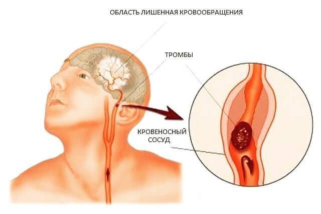 Как понять, что причина головных болей — опухоль головного мозга