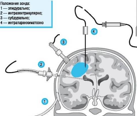 Измерение внутричерепного давления