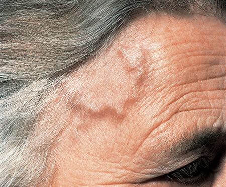Височный артериит провоцирует головные боли