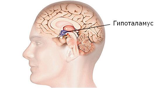Почему возникает мигрень у детей, женщин и мужчин