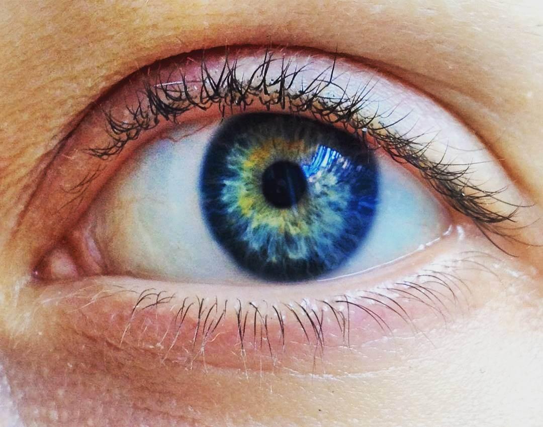 Симптомы и лечение глазной мигрени (мерцательной скотомы)