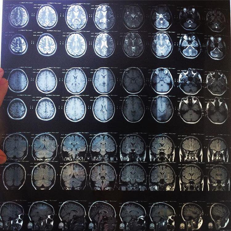 Какие лекарства при сотрясении головного мозга можно принимать взрослым