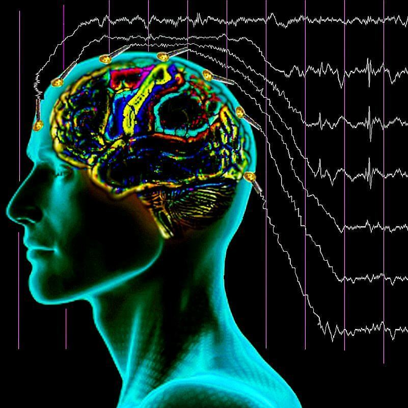 ЭЭГ (электроэнцефалография) головного мозга: особенности проведения обследования