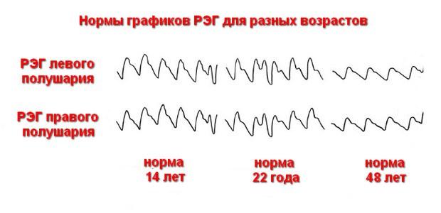 Расшифровка РЭГ головного мозга
