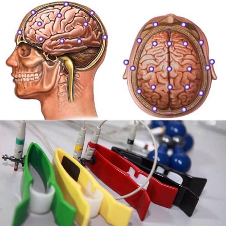 Реоэнцефалография сосудов головного мозга (РЭГ)