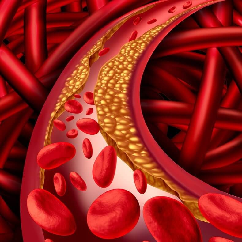 Снижение плохого холестерина