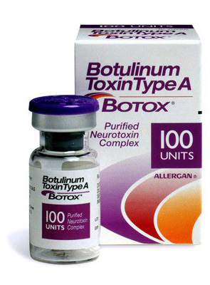 Ботулотоксин от мигрени