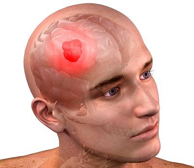 Признаки, причины и лечение глиобластомы головного мозга