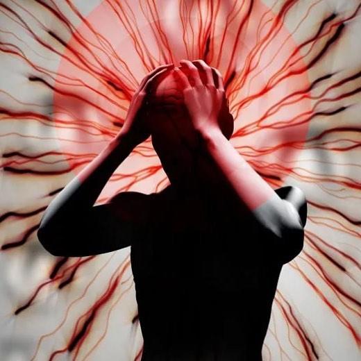 Боль в верхней части головы