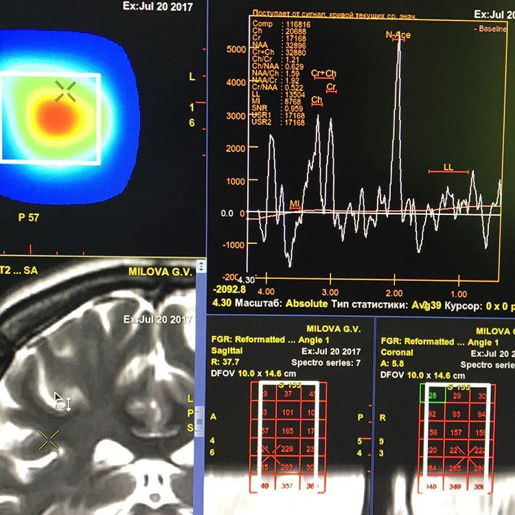 Диагностика глиомы головного мозга