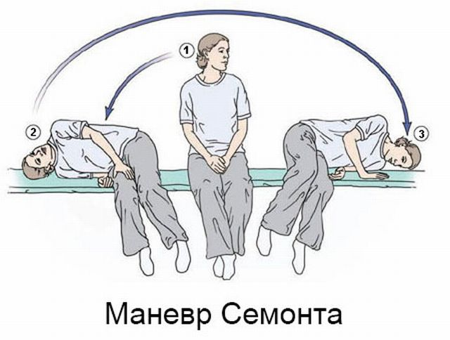 Лечение головокружения у женщин