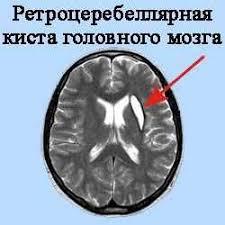 Как распознать и вылечить ретроцеребеллярную кисту головного мозга