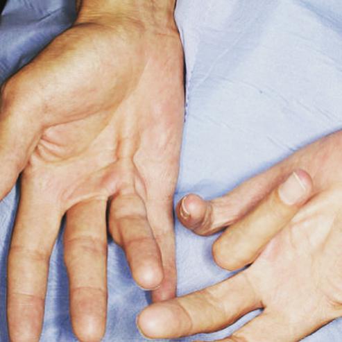 Головокружение и онемение рук