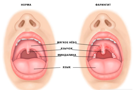 Причины боли в горле и голове