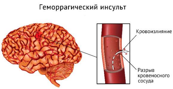 Геморрагический инсульт мозжечка головного мозга