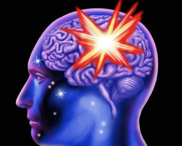Обширный инсульт мозжечка