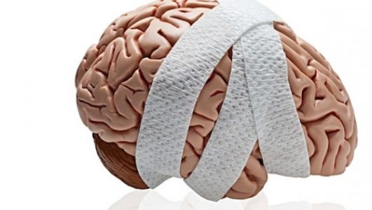 Что такое арахноидит головного мозга и каковы причины его возникновения