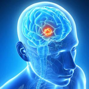 Диагностика менингиомы