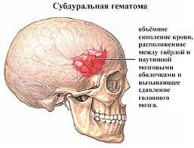 Гематомы головы виды