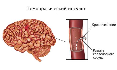 Геморрагический инсульт правой стороны