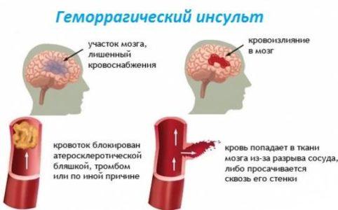 Классификация геморрагического инсульта