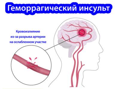 Осложнения при сужении сосудов головы
