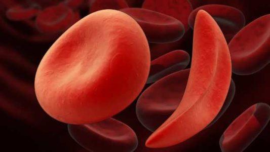 Предпосылки к развитию геморрагического инсульта