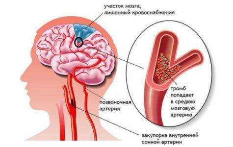 Причины микроинсульта у мужчин