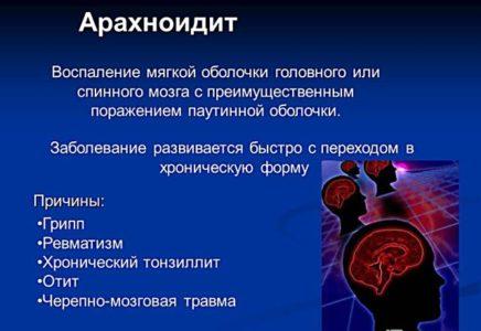 Причины арахноидита головного мозга