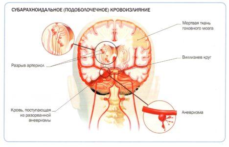 Субарахноидальная гематома головного мозга