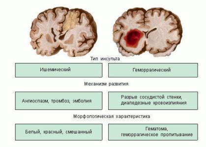 Типы инсульта в пожилом возрасте