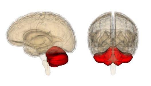 Атрофия мозжечка головного мозга