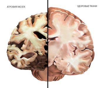Атрофия паренхимы головного мозга