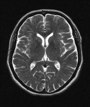 Атрофия вещества головного мозга