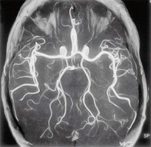 Диагностика головокружения при повороте головы