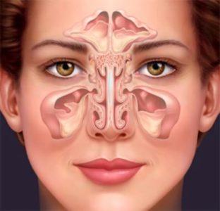 Гайморит как причина заложенности носа и головной боли