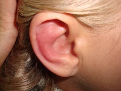 Головокружение как симптом заболеваний