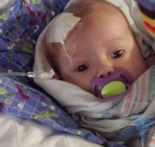 Лечение кисты в голове у новорожденного