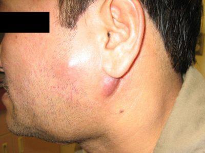 Почему болит голова за ухом
