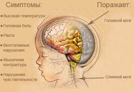 Менингит как причина боли у основания черепа