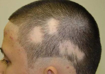 Мышьячная токсическая энцефалопатия головного мозга