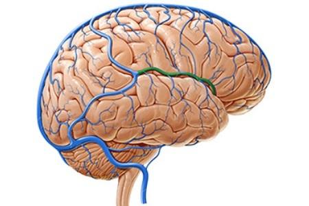 Причины и лечение нарушения венозного оттока головного мозга