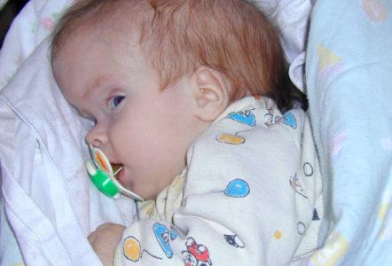 Опухоль головного мозга у новорожденных