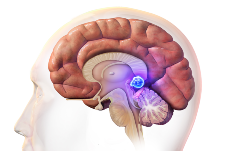 Пинеальная киста головного мозга