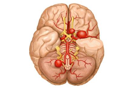 Показания к проведению шунтирования сосудов головного мозга