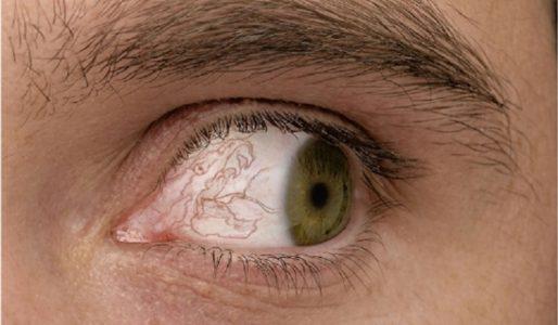 При повороте глаз болит голова