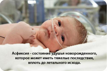 Причины врожденной гидроцефалии головного мозга у детей