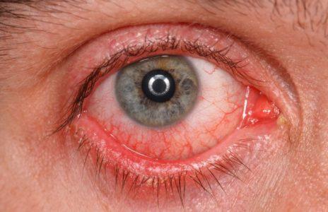 Симптомы нарушения венозного оттока